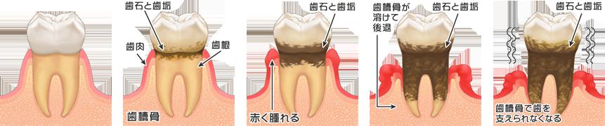 歯周病 韋歯科 大阪西区 九条の歯医者