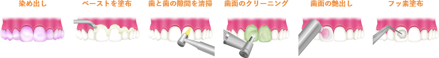 PMTC手順 韋歯科 大阪西区 九条の歯医者