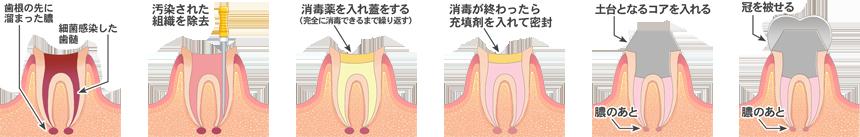 抜髄処置 根管治療 韋歯科 大阪西区 九条の歯医者