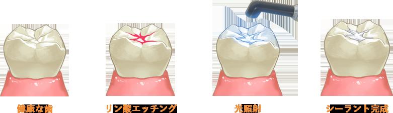 シーラント 韋歯科 大阪西区 九条の歯医者
