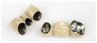 メタルボンド い歯科 大阪西区 九条の歯医者
