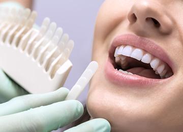 デュアル・ホワイトニング 韋歯科 大阪西区 九条の歯医者